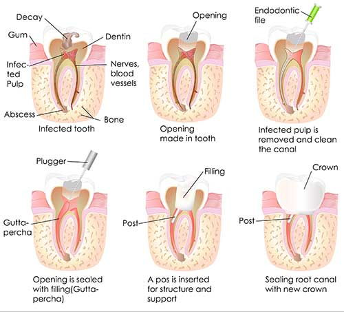 Root Canal in Lady Lake